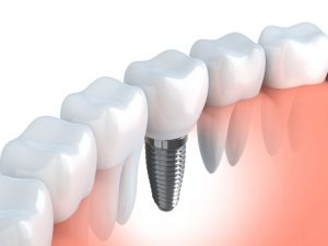 Farmington Dental Implants