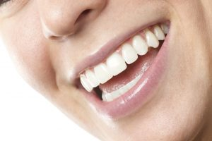 Your cosmetic dentist in Farmington will transform your smile with porcelain veneers.