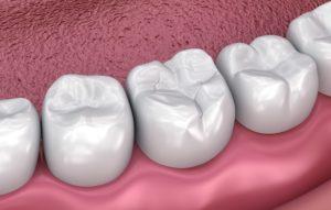 Digital image of a dental sealant on a molar